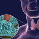 Adenocarcinoma alla tiroide