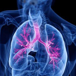 Carcinoma bronchiale