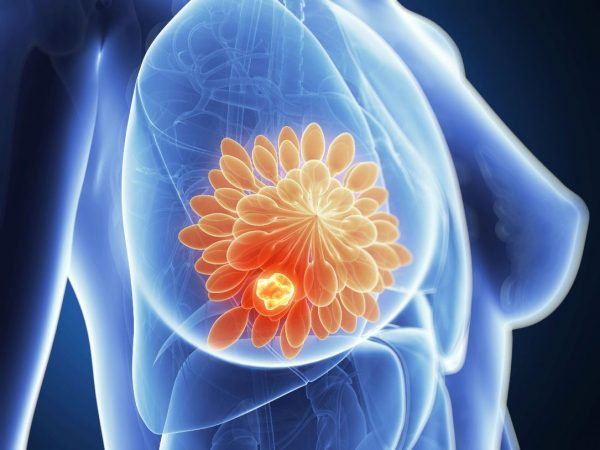 Carcinoma duttale